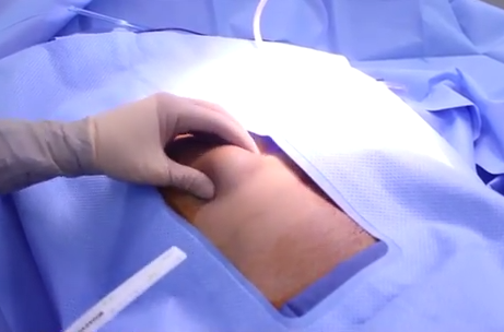 lipoma-removal-dr-firouz-los-angeles